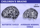 "<img src=""http://www.thenextrex.com/wp-content/uploads/2015/03/normal-brain-vs-autistic-child-brain.png"" alt=""normal brain vs autistic child brain"">"