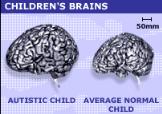 "<img src=""http://www.thenextrex.com/wp-content/uploads/2015/03/normal-brain-vs-autistic-child-brain.png"" alt=""normal brain vs autistic child brain"">"