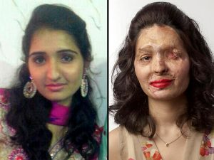 acid-attack-survivor-reshma