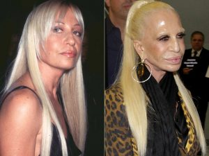 worst-cases-of-celebrity-plastic-surgery-gone-wrong-1.jpg