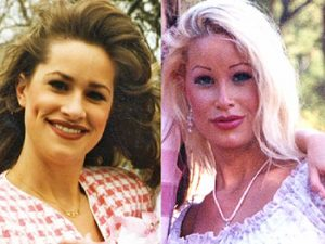 plastic-surgery-before-and-after-