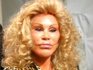 plastic-surgery-gone-wrong-1-78